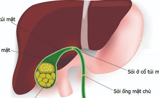 """25% tổn thương gan ở Mỹ có nguyên nhân do thảo mộc: Bác sĩ Việt tại Nhật cảnh báo 5 yếu tố hàng đầu gây bệnh gan mật, đặc biệt nhấn mạnh thói quen dùng """"thuốc"""""""