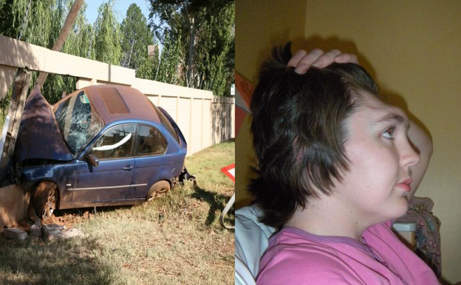 Chỉ vì 1 tư thế kỳ cục khi đi ô tô, cô gái này đã mất trán, ai đi xe cũng nên lưu ý