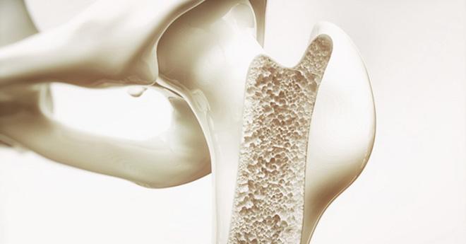 BS tiết lộ công thức tự đánh giá nguy cơ loãng xương: 3 nhóm người nên kiểm tra ngay - Ảnh 1.