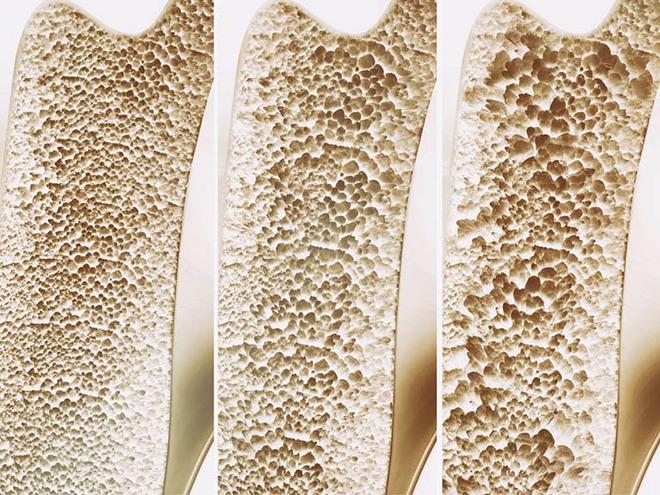 BS tiết lộ công thức tự đánh giá nguy cơ loãng xương: 3 nhóm người nên kiểm tra ngay - Ảnh 4.
