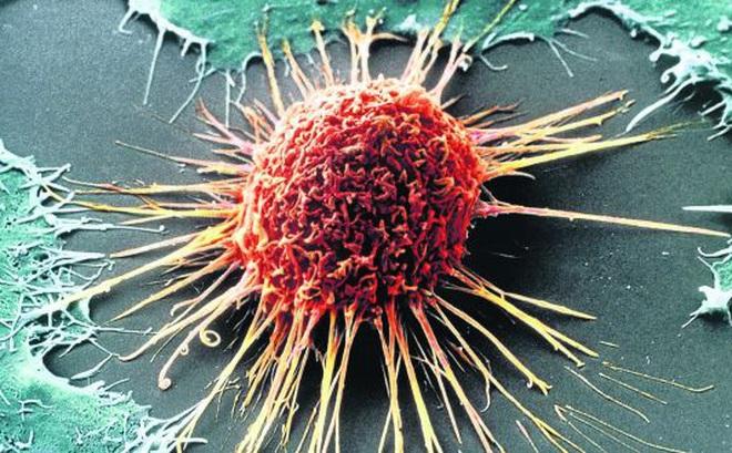 """Sốc với các thủ thuật """"tinh quái"""" của tế bào ung thư: Chuyển trạng thái dễ nuôi và giả vờ biến mất..."""