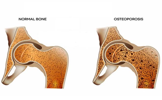 BS tiết lộ công thức tự đánh giá nguy cơ loãng xương: 3 nhóm người nên kiểm tra ngay