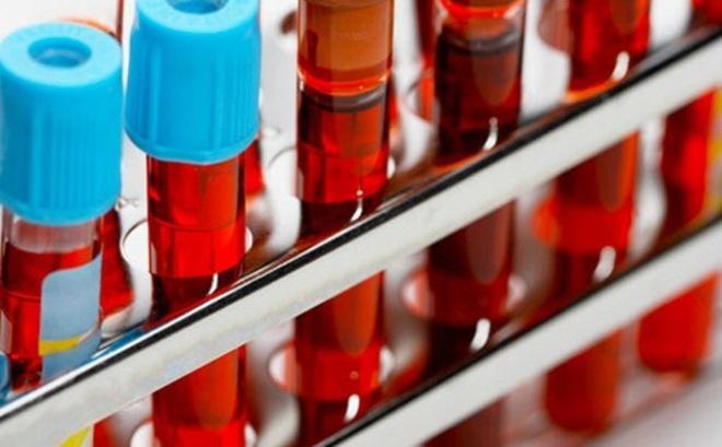 Những bí ẩn về nhóm máu