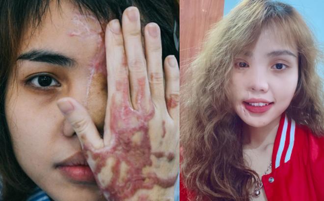 """Cô gái bị chồng sắp cưới tạt axit hủy hoại nửa khuôn mặt và hành trình đau đớn để phục hồi nhan sắc """"ngoạn mục"""""""