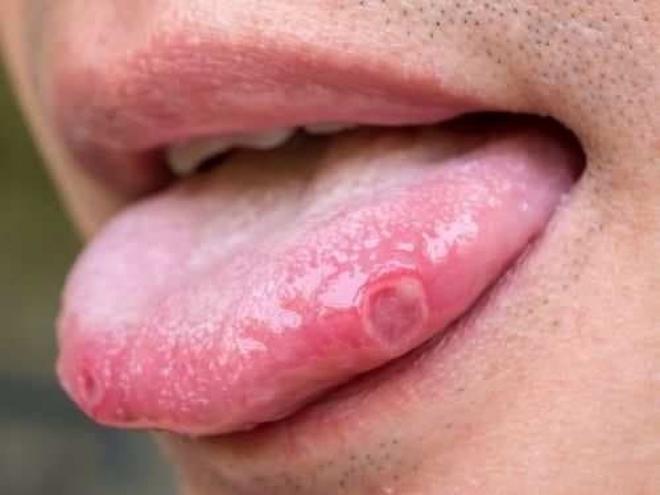 Xuất hiện 3 triệu chứng mới là dấu hiệu ban đầu mắc COVID-19 - Ảnh 2.