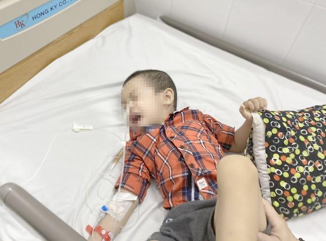 Bé 4 tuổi bỏng thực quản do hóc dị vật: Vì sao nuốt phải pin cực kỳ nguy hiểm? - Ảnh 1.