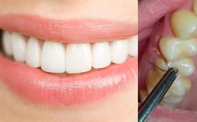 Cực kỳ hiếm gặp và kỳ quái: Lông mọc lỉa chỉa từ nướu răng của cô gái, nhổ lên lại mọc tiếp, bác sĩ bó tay!
