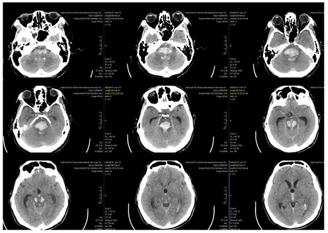 Cảnh báo nguy cơ đột quỵ gia tăng dịp Tết: 4 chữ cái báo hiệu triệu chứng đột quỵ bạn cần biết - Ảnh 1.