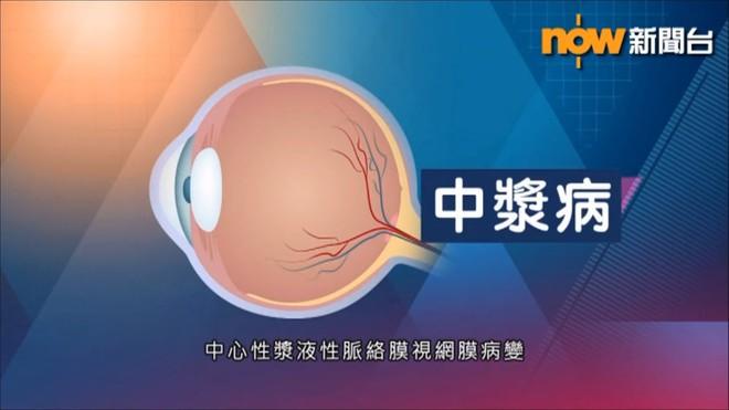 BS nhãn khoa: Người trẻ sử dụng điện thoại, máy tính nhiều có thể mắc bệnh mắt vĩnh viễn - Ảnh 5.