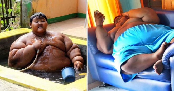 Từng được mệnh danh là đứa trẻ béo nhất thế giới, ngoại hình của cậu bé Indonesia giờ ra sao? - Ảnh 1.