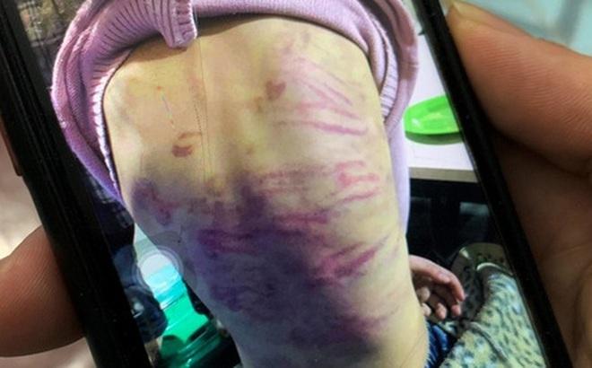 [NÓNG] Khởi tố người mẹ bạo hành con, cùng gã tình nhân cưỡng bức bé gái 12 tuổi ở Hà Nội