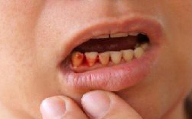 3 dấu hiệu ở răng chứng tỏ gan đang 'kêu cứu': Hãy tự kiểm tra xem bạn có không?