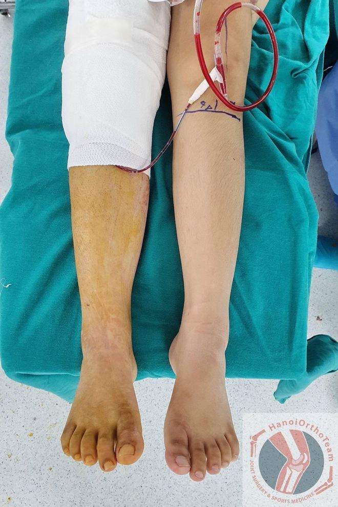 Ca phẫu thuật thay xương đùi cho bệnh nhân nhỏ tuổi nhất Việt Nam, thứ 2 thế giới - Ảnh 4.