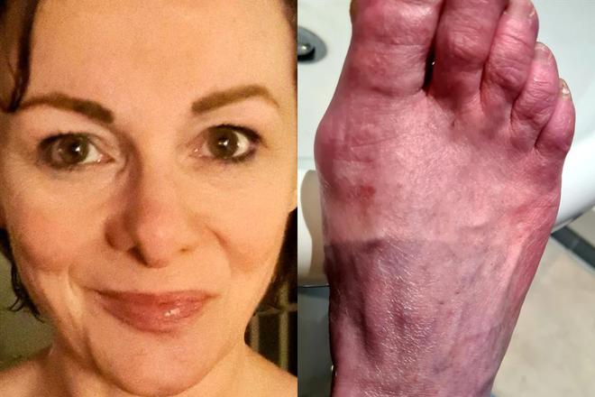 Cảm giác như bỏng phóng xạ: Triệu chứng ngón chân COVID khiến người bệnh sợ hãi, bác sĩ nói gì? - Ảnh 1.