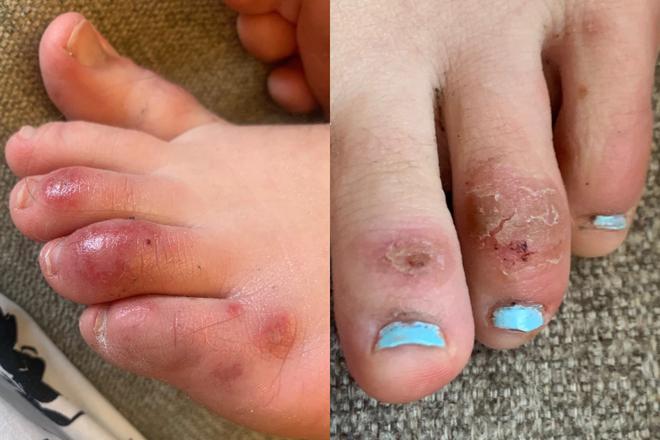 Cảm giác như bỏng phóng xạ: Triệu chứng ngón chân COVID khiến người bệnh sợ hãi, bác sĩ nói gì? - Ảnh 5.