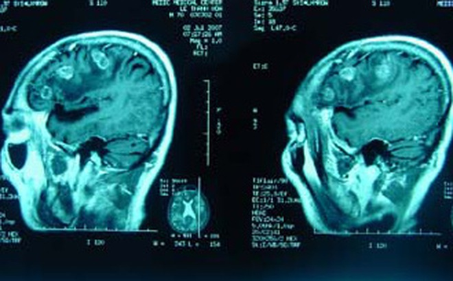 """Hình ảnh CT não của cháu bé ngã từ tầng 13 chung cư không có tổn thương, BS thốt lên """"Tôi không thể tưởng tượng..."""""""