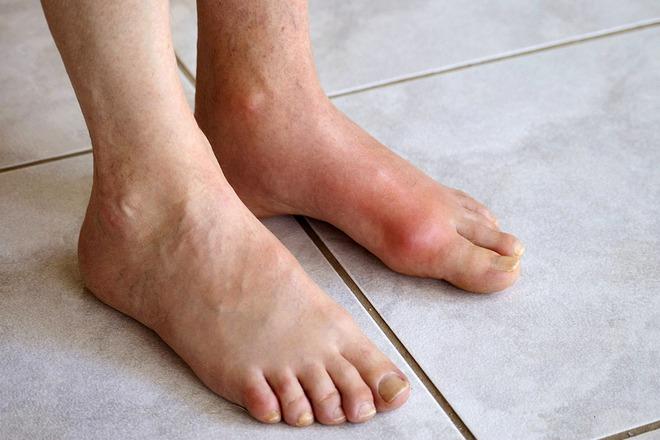 Không muốn bị bệnh gút đau như bị chuột gặm chân: Hãy bớt ăn 4 loại thực phẩm  làm tăng axit uric - Ảnh 1.