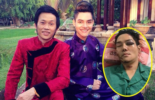 Bất ngờ về cuộc sống của con nuôi Hoài Linh từng bị tai nạn nghiêm trọng - Ảnh 3.