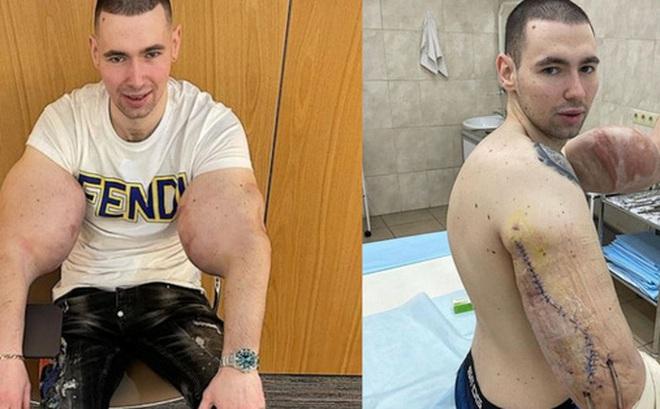 'Popeye nước Nga' buộc phải phẫu thuật sau khi cánh tay kinh dị bị thối vì tiêm hóa chất kích thích