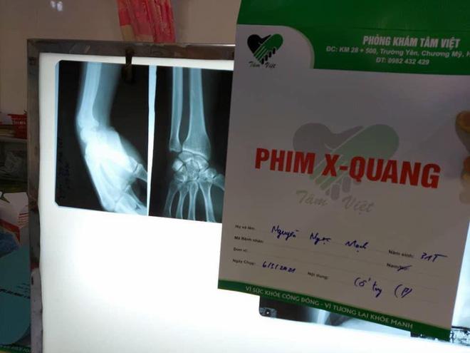 Người hùng cứu bé 3 tuổi rơi từ tầng 12 chung cư ở Hà Nội bị rạn xương tay, phải tạm nghỉ lái xe - Ảnh 2.