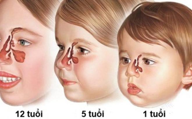 Trẻ em có bị viêm xoang?