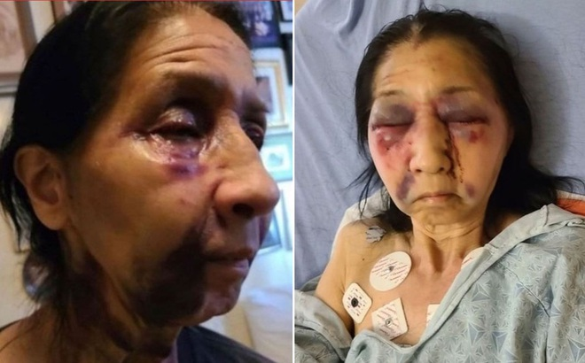 Cụ bà Mexico bị đánh thâm tím mặt trên xe buýt Mỹ vì 'trông giống người châu Á'