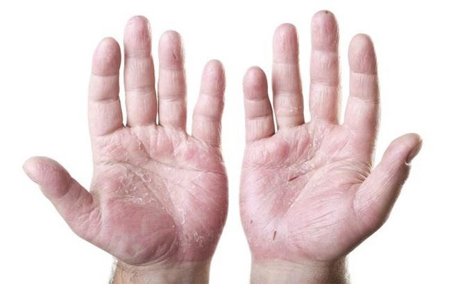"""8 dấu hiệu cơ thể """"kêu cứu"""" vì ăn thiếu chất: Rất nhiều người ăn sai cách gặp tình trạng này"""