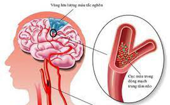 Cách nào phòng tai biến mạch máu não?