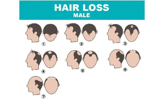 Có cách nào chữa được rụng tóc, hói đầu không? Bác sĩ khuyên nên bắt đầu từ 4 nguyên nhân - Ảnh 2.