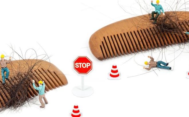 Có cách nào chữa được rụng tóc, hói đầu không? Bác sĩ khuyên nên bắt đầu từ 4 nguyên nhân