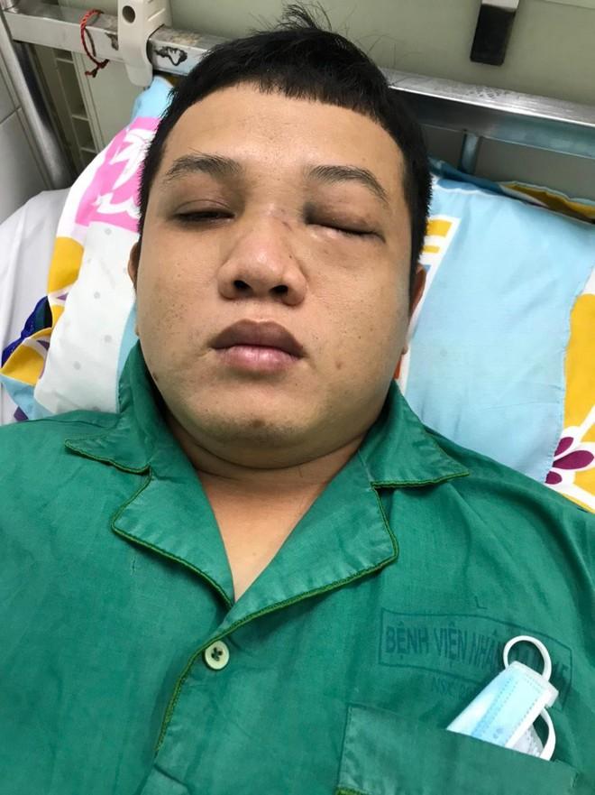 Chào hỏi trong quán nhậu, thanh niên bị 2 cán bộ CSGT đánh nhập viện - Ảnh 2.
