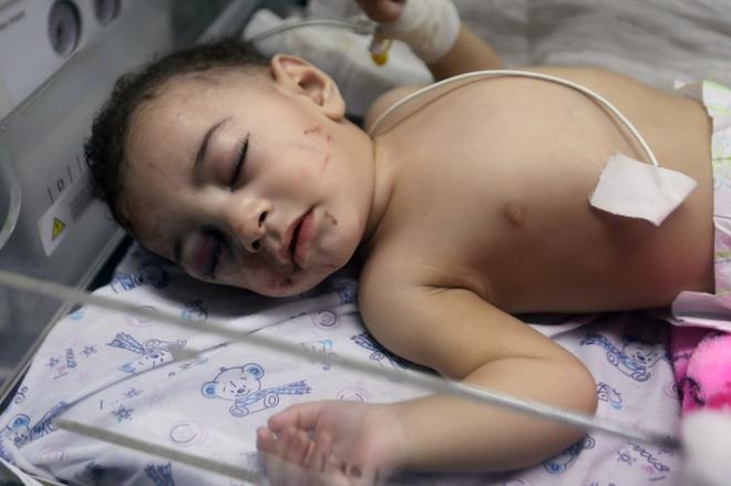 Ám ảnh em bé được cứu khỏi đống đổ nát sau cuộc không kích của Israel - ảnh 2