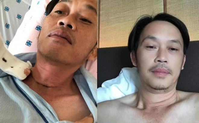 Căn bệnh ung thư mà Nghệ sĩ Hoài Linh mắc có nguy hiểm không?