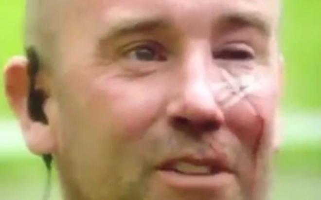 Cảnh sát may mắn khi không mù sau cú ném tai hại ở vụ biểu tình của fan Man United