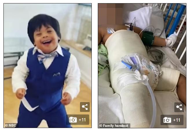 Cậu bé 3 tuổi rơi từ tầng 5 nhờ 1 thứ mà sống sót kỳ diệu, hiện trường khiến nhiều người kinh ngạc - Ảnh 4.