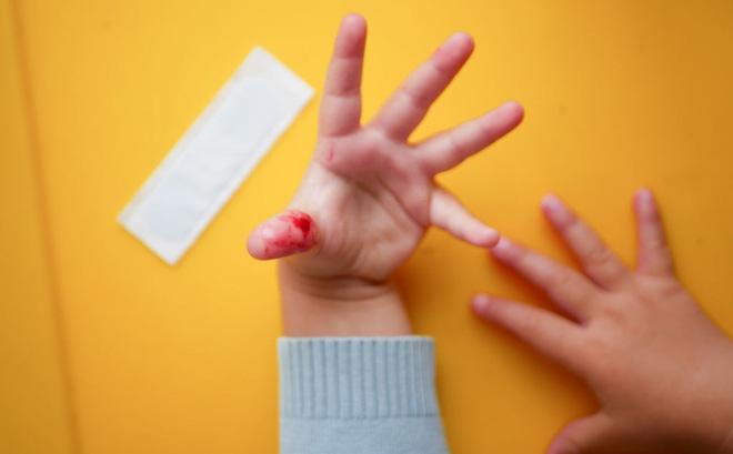 Trẻ bị đứt lìa ngón, cánh tay, bàn tay, bàn chân, ngón chân do những tai nạn ít ai ngờ tới
