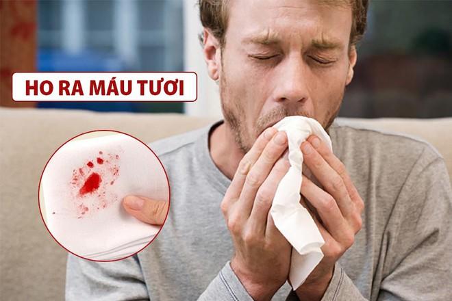 Thêm 1 triệu chứng Covid-19 mới: Bệnh nhân ho ra máu; Thế giới ghi nhận gần 3,8 triệu người chết - Ảnh 1.