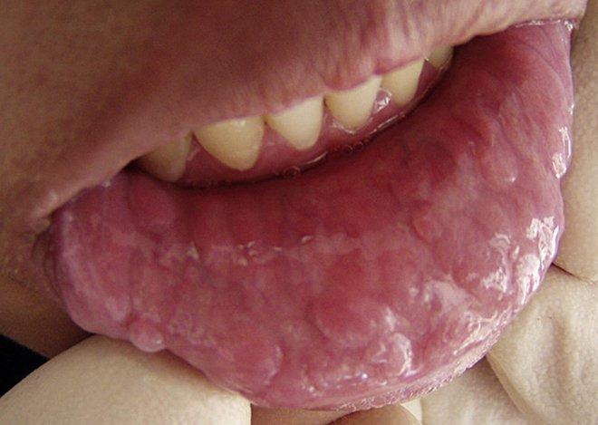Ngày càng nhiều người trẻ thích quan hệ tình dục bằng miệng: BS mách nước 2 cách giảm nguy cơ lây nhiễm HPV và ung thư - Ảnh 4.