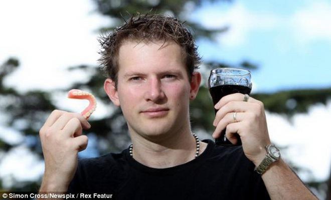 Dùng răng giả ở tuổi 25 vì uống quá nhiều Cocacola