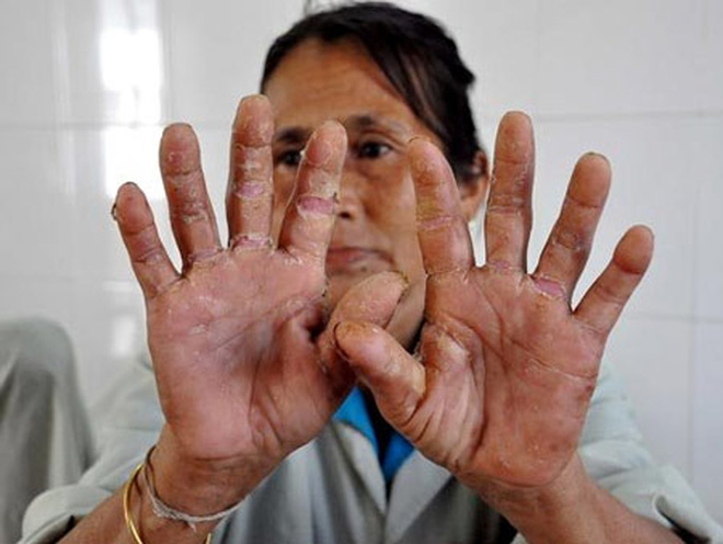 Bệnh lạ ở Quảng Ngãi: thêm 17 người mắc mới