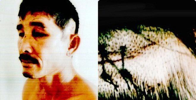 Phó công an xã bị tố đánh dân chấn thương sọ não