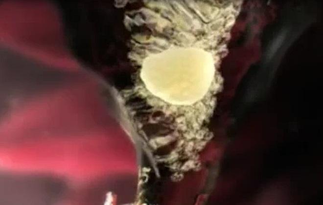 Thú vị khi chứng kiến cơ chế rụng trứng ở phụ nữ
