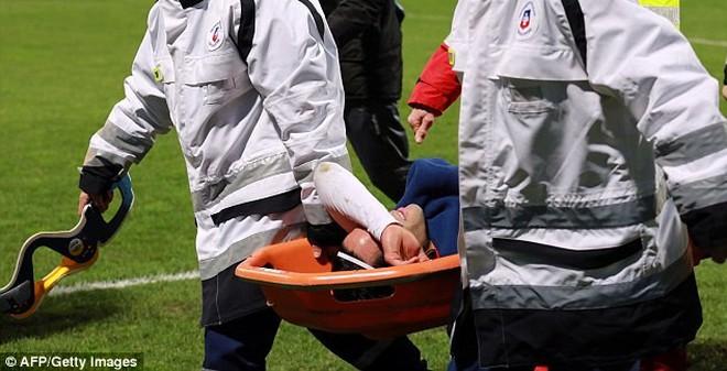 Chấn thương nghiêm trọng, Falcao có nguy cơ mất World Cup