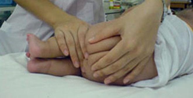 Tác dụng phụ nguy hiểm của thuốc hạ sốt đặt hậu môn