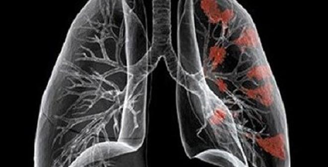 Những biểu hiện của bệnh ung thư phổi