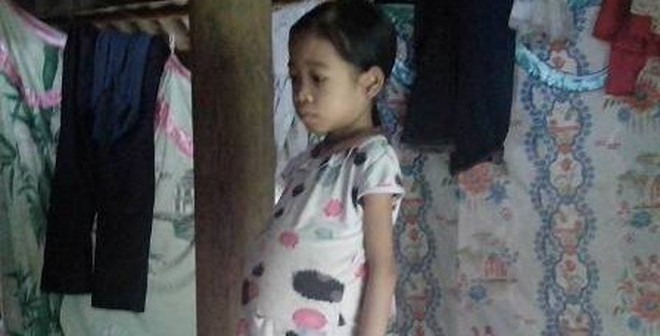 Gia đình người Dao có 2 con đều mắc bệnh thiếu máu huyết tán