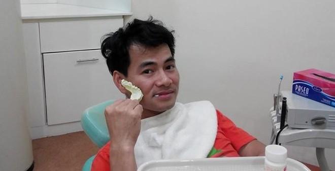Xuân Bắc đầu tóc rối bù đi chữa răng cận Tết