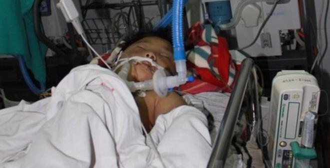 Trường học bàng hoàng chuyện HS 8 tuổi bị bố đánh dã man