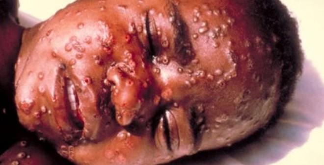 Dịch Ebola tăng kinh khủng, không loại trừ sẽ tràn vào Việt Nam