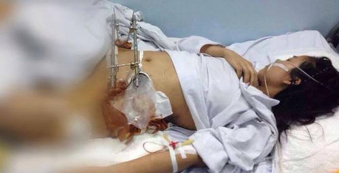 HN: Một cô gái bị xe bus đâm vỡ xương chậu, thủng tử cung